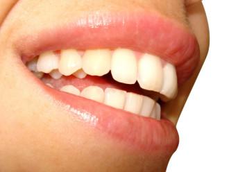 Grávida pode fazer limpeza nos dentes?
