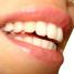 Clareamento dental – quando fazer?