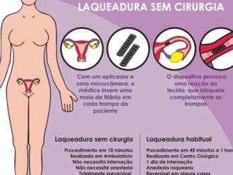 Laqueadura ou Ligadura de Trompas com e sem cirurgia