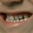 Dentes escurecidos: O dentinho do meu filho está escurecendo, o que fazer?