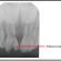 Fratura no dente de leite: O que fazer se o dente de leite quebrar