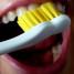 Erros comuns ao escovar os dentes